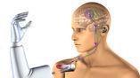 Электрод вживляется в мышцу, которая получает сигналы напрямую от мозга