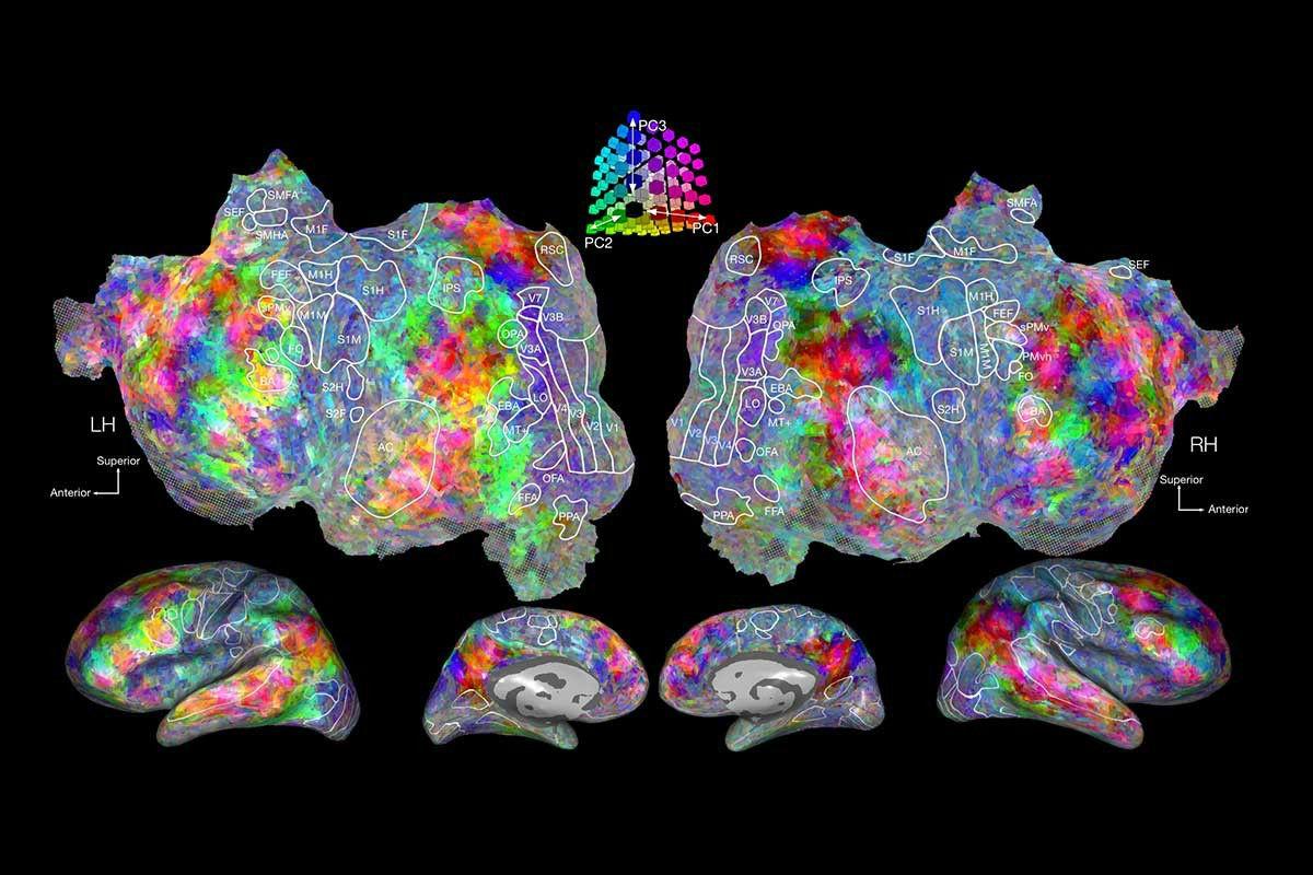 Реакцию на те или иные слова исследователи изучали при помощи метода функциональной магнитно-резонансной томографии (иллюстрация Alexander Huth / The Regents of the University of California).