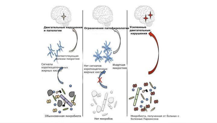 Работа ученого-армянина из США помогла выдвинуть новую теорию о причинах болезни Паркинсона