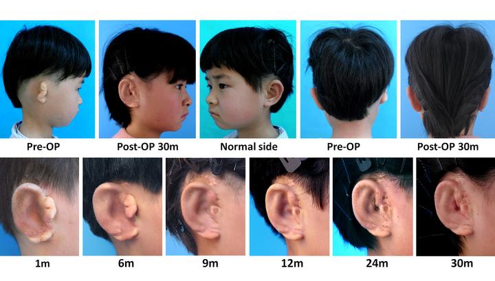Китайским детям пришили уши, напечатанные на 3D-принтере