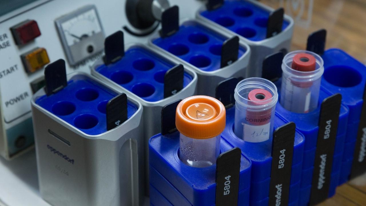 Биологи вылечат аутоиммунные заболевания с помощью белка-дипломата
