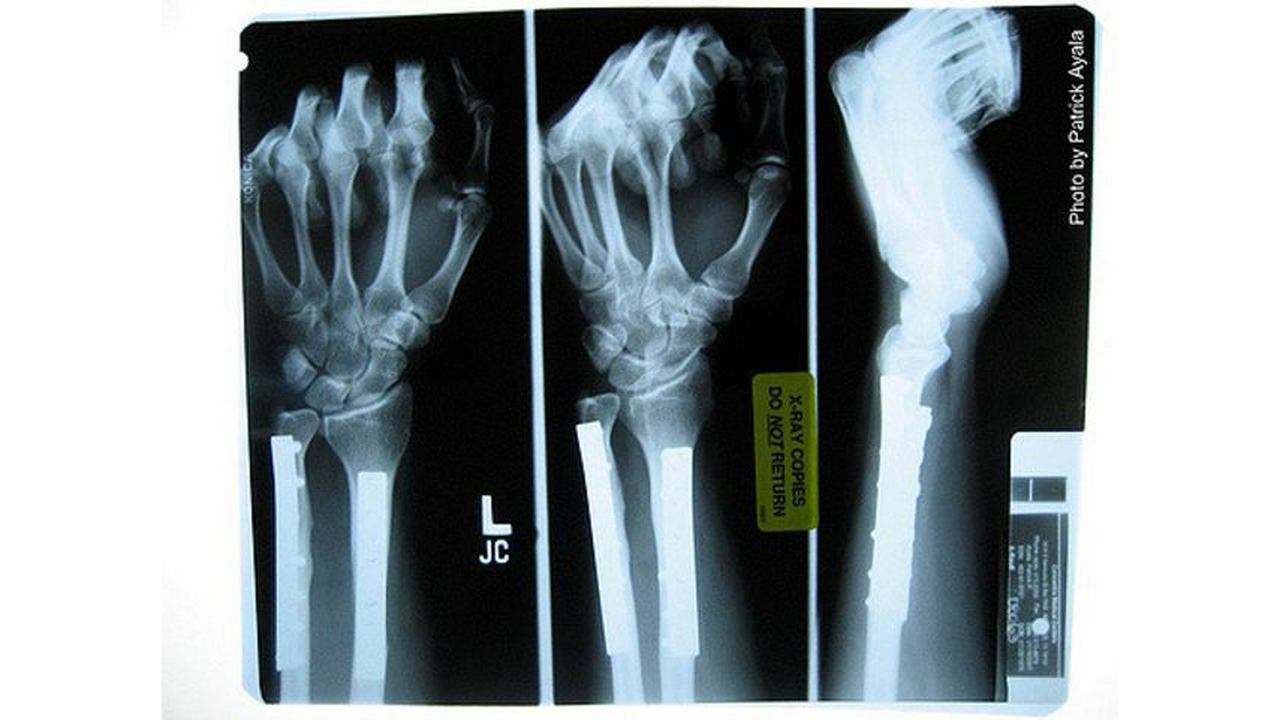 Возрастное разрушение костей удалось обратить одним уколом