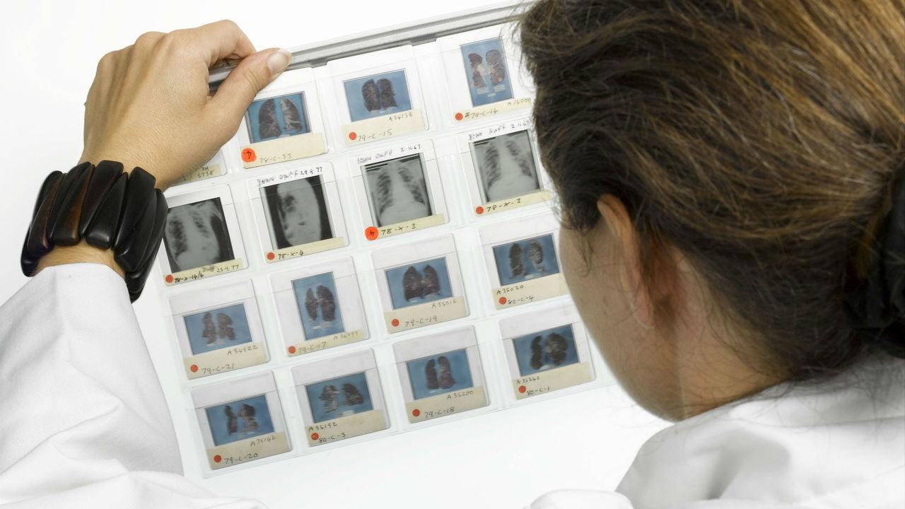 Обнаружена неожиданная функция лёгких: они производят кровь