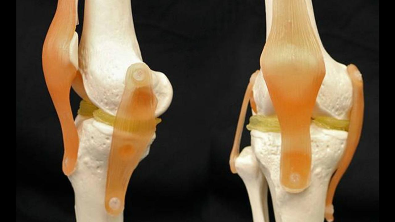 Гидрогель, имитирующий хрящевую ткань, поможет создавать идеальные имплантаты для коленей