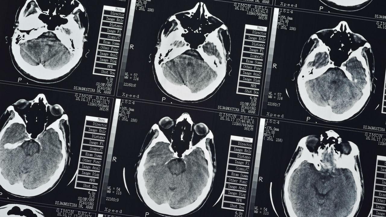 В лаборатории впервые создано природное соединение, разрушающее мозг человека
