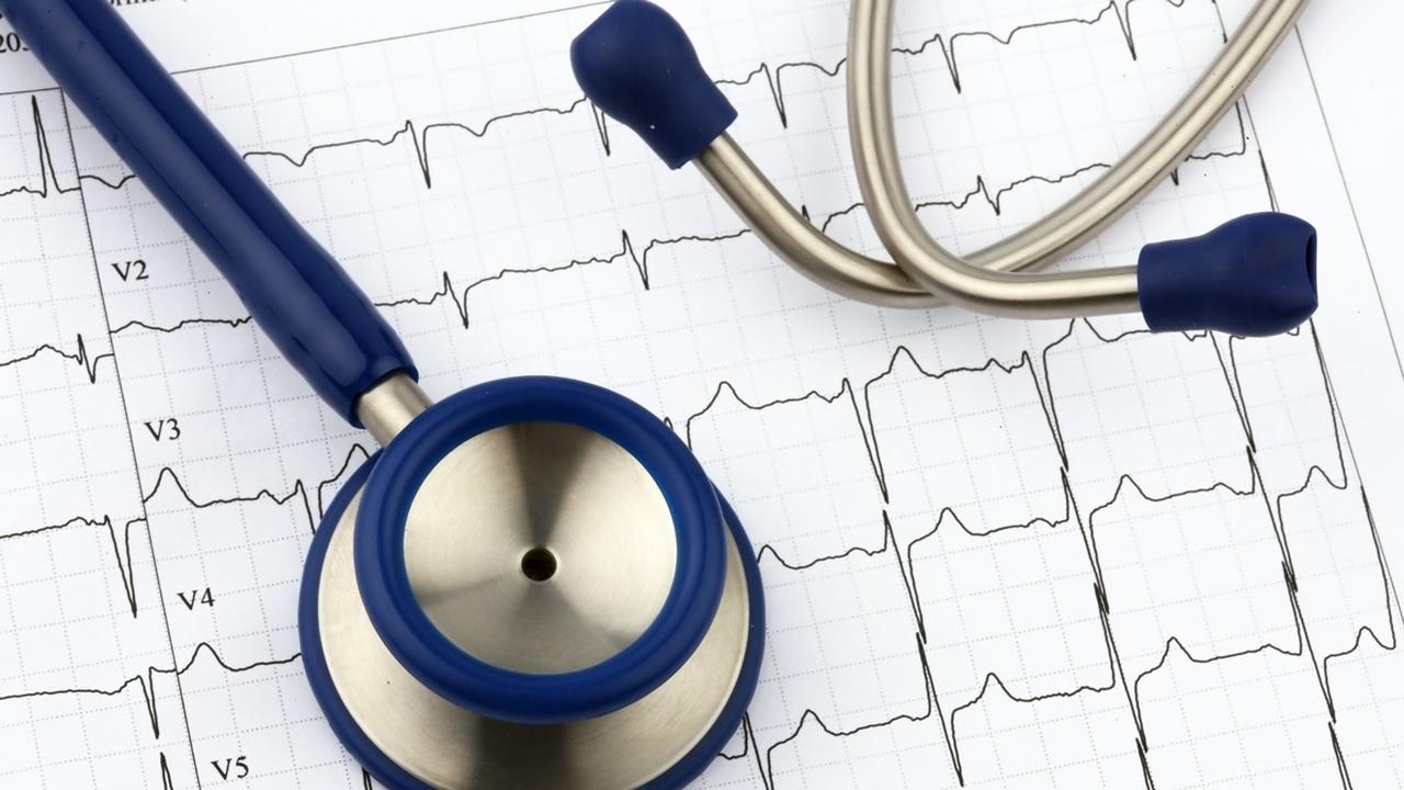 Искусственный интеллект обнаружит бессимптомное сердечное заболевание по электрокардиограмме