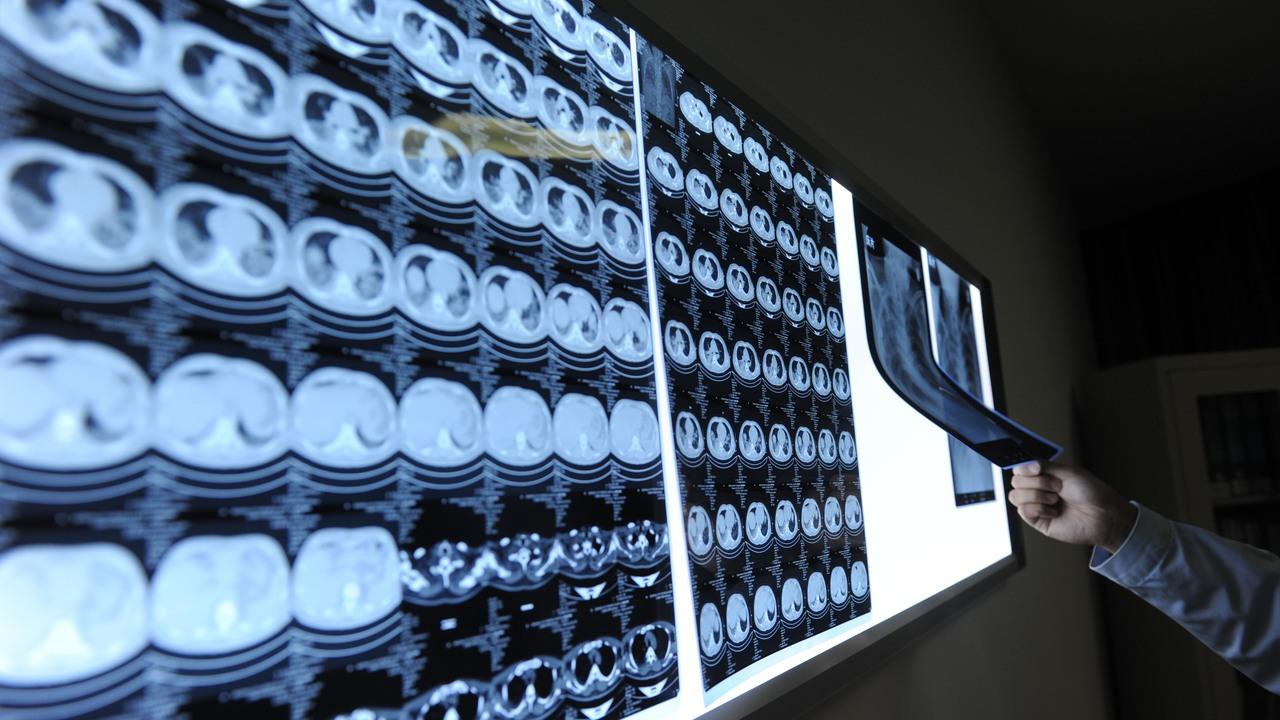 Настроили прицел: наночастицы платины точно нацеливаются на раковые клетки