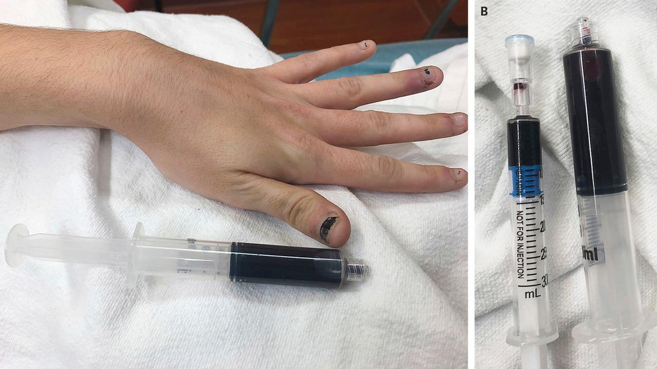 Кровь женщины стала синей после приёма препарата от зубной боли