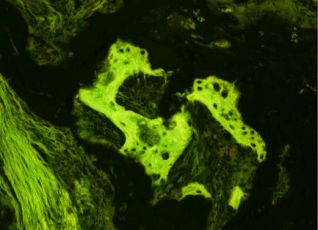 Костная ткань, сформированная из ИПК у макаки-резуса