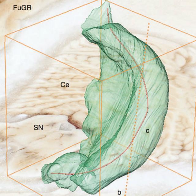 3D-реконструкция части левого гиппокампа, оставшейся после операции