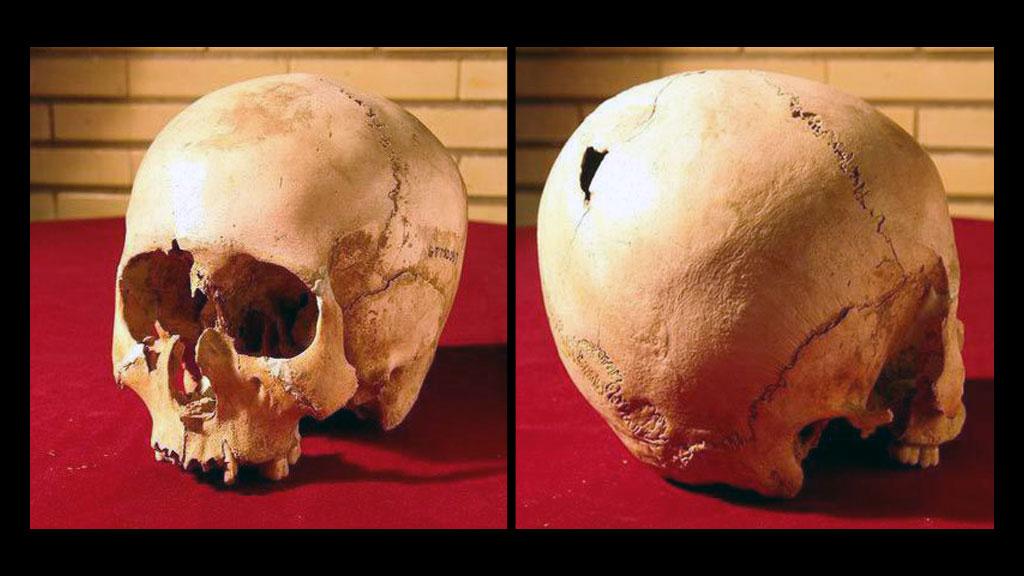 Череп девочки-гидроцефала со следами трепанации черепа, ок. 4800 года до н.э. Фото: Музей истории медицины, Тегеран