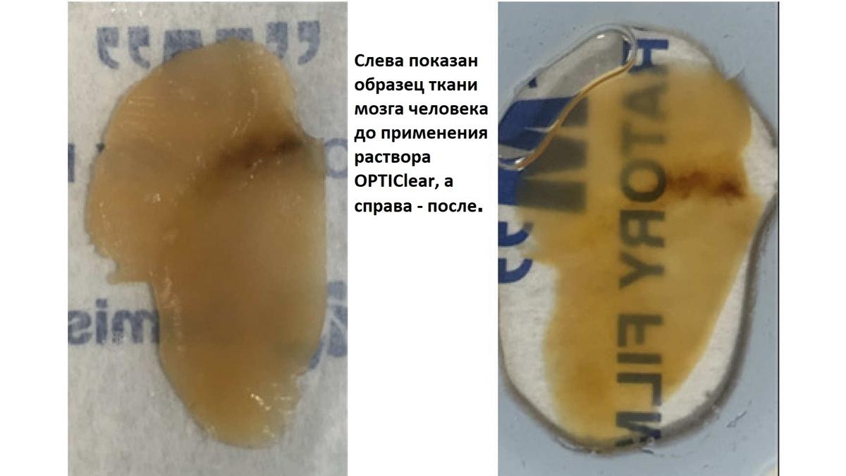 Сравнение: до и после применения раствора.