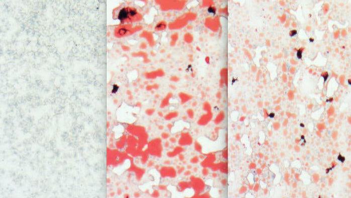 Изображение печени грызуна, которого кормили пищей с высоким содержанием жиров. Видны жировые отложения (показаны красным цветом). Возможно, что природный сахар, способный уменьшать эти отложения, в будущем пригодится при лечении метаболического синдрома.