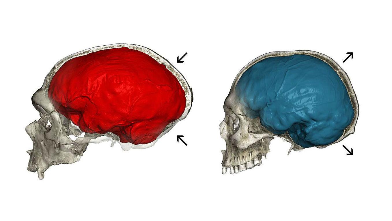 Изучая фрагменты неандертальской ДНК в геномах ныне живущих европейцев, учёные обнаружили гены, влияющие на форму черепа.