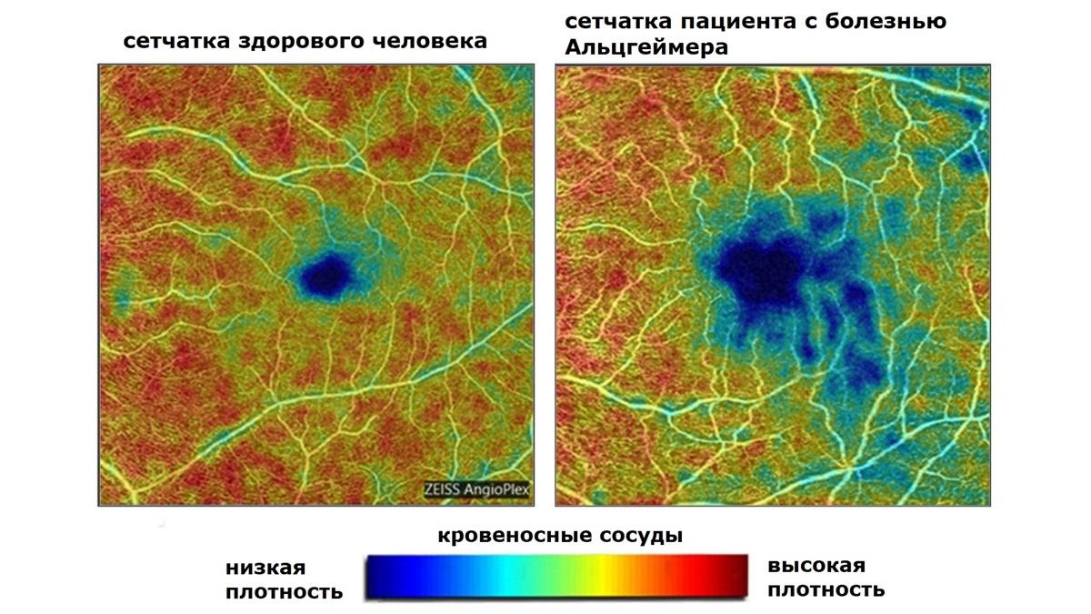 Изображения получены с помощью оптической когерентной томографии с ангиографией.