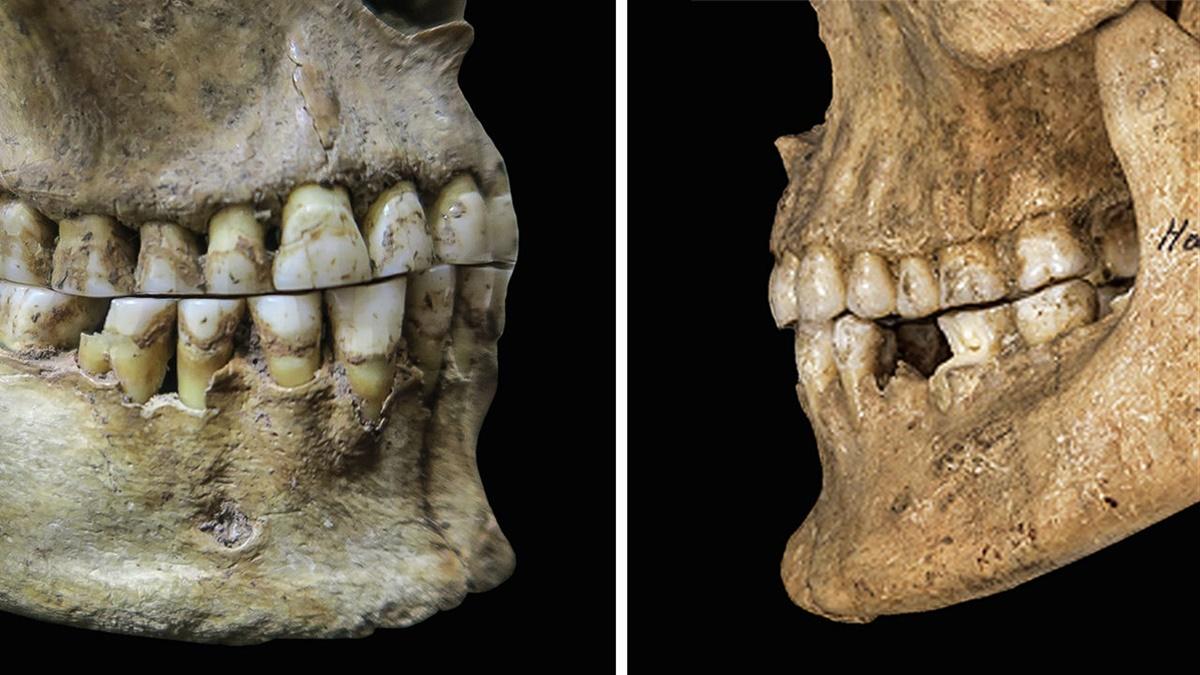 Так называемый ровный прикус (слева) и более современный вариант (справа).