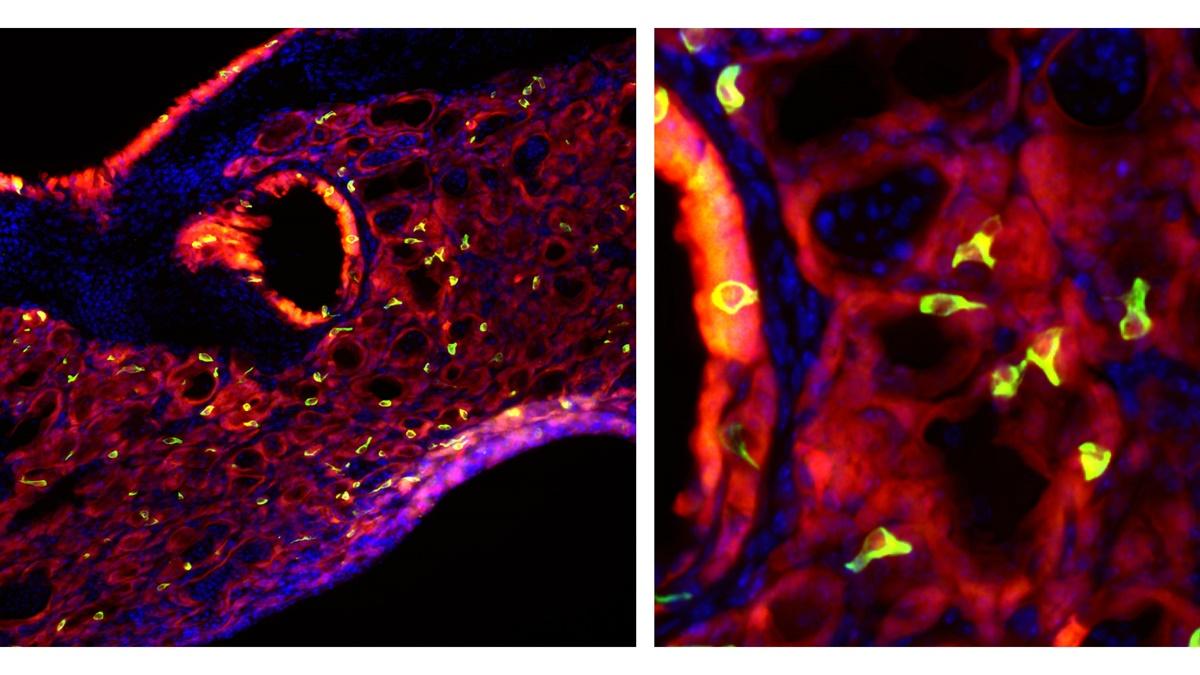 Пучковые клетки (выделены зелёным цветом) в лёгких мышей. Такое название дано клеткам из-за крошечных ворсинок на их поверхности.