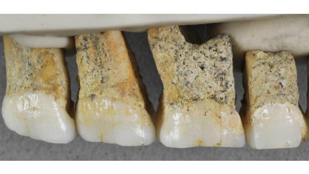 Верхние зубы гоминина Homo luzonensis.