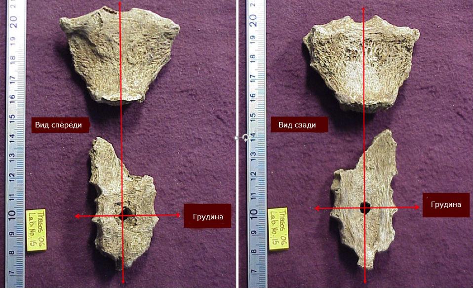 Грудина древнего человека с почти идеальным по форме отверстием.