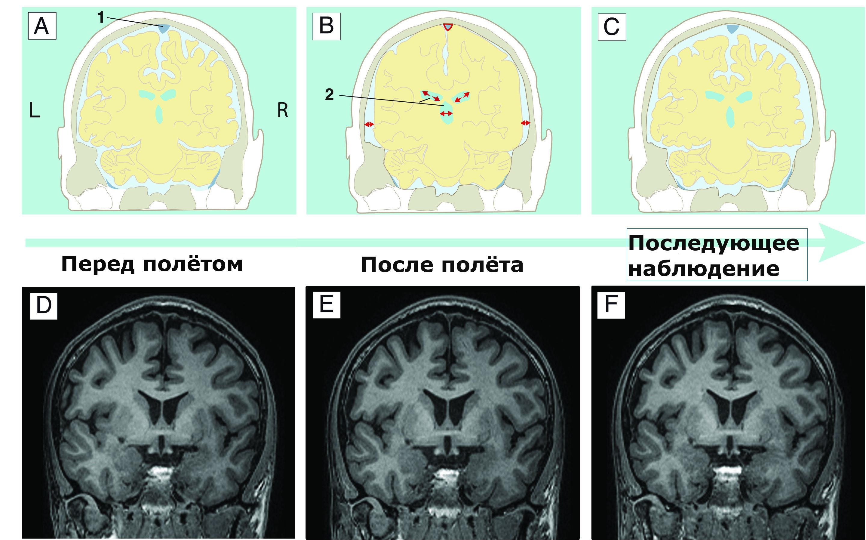 МРТ–снимки демонстрируют расширение полостей желудочков.