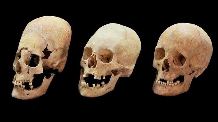 Два черепа √ слева и посередине √ были подвержены деформации, а тот, что справа, остался без изменений.
