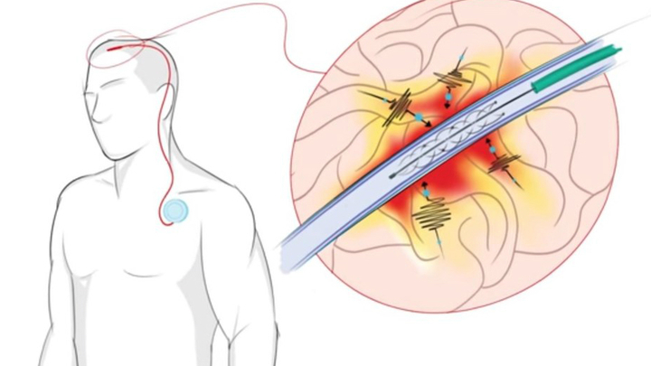 Устройство имплантируется в тело посредством простой и безопасной процедуры