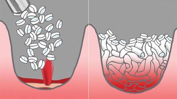 Губки впитывают кровь, расширяются и перекрывают рану. Устройство помогает медикам выиграть до четырёх часов времени.