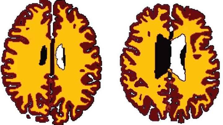 Сравнение объёмов белого и серого вещества у 56-летнего человека с нормальным весом (слева) и 50-летнего с ожирением.