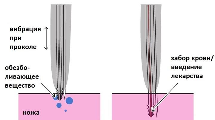 Схема работы нового инструмента для безболезненных уколов.
