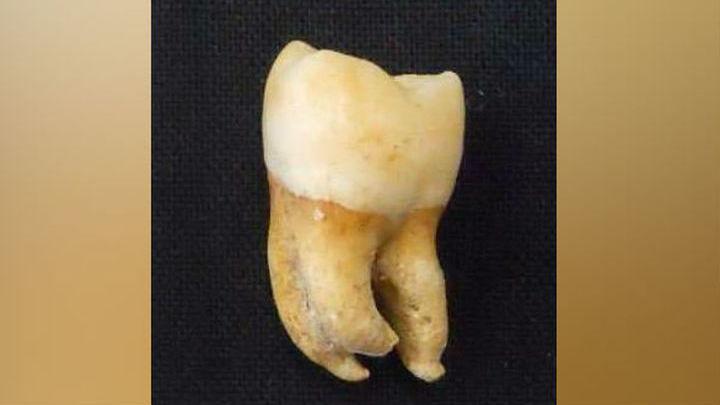 Зуб XIX века, использованный в исследовании как один из образцов.