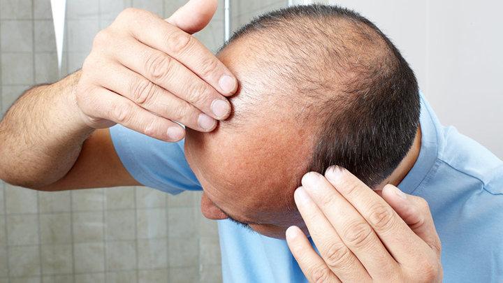 Борьба с облысением: рост волос стимулирует новый пластырь с микроиглами