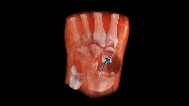 Новый рентген-сканер делает цветные и трёхмерные снимки.