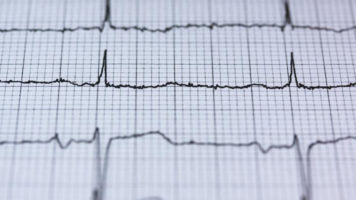 На сегодняшний день более 25 миллионов человек в мире живут с сердечной недостаточностью.
