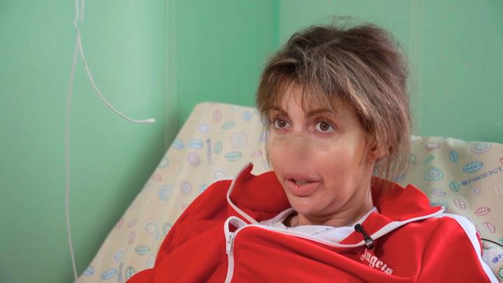 """Кадр из программы """"Прямой эфир"""". Алиса Аршавина объяснила, как лишилась носа"""