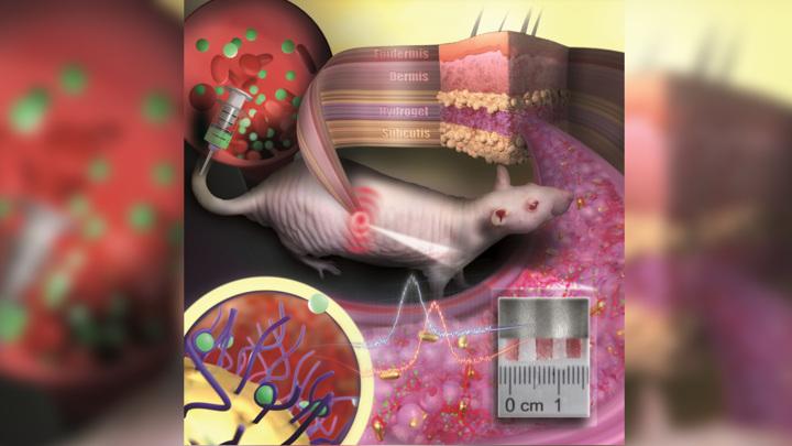 Золотые наночастицы, погруженные в полимер, работают как медицинский сенсор.