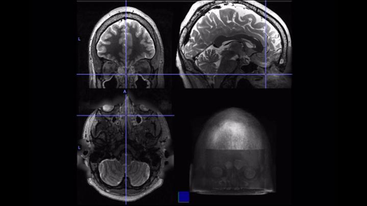 Сканы функциональной МРТ мозга одного из участников исследования.