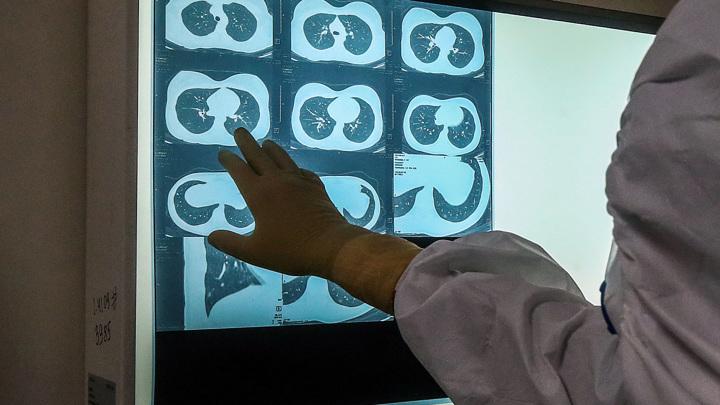 Отечественная нейросеть выявляет ковид по рентгеновским снимкам