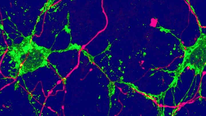 Клетки нового типа (выделены зелёным) контактируют с нейронами (выделены розовым).