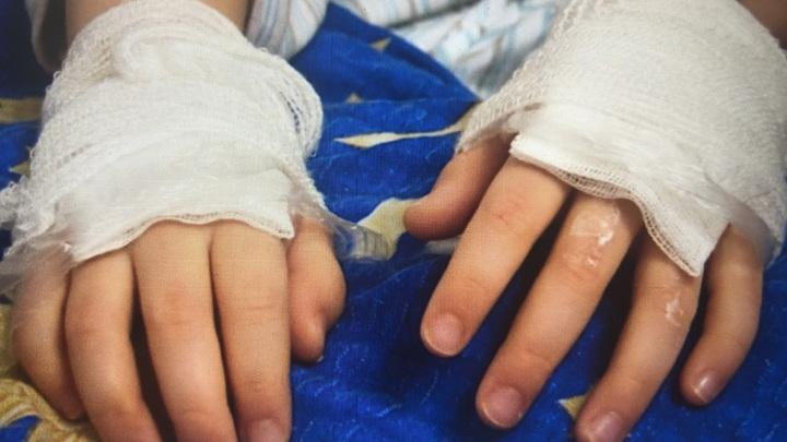 В Ташле девочка обварилась кипятком, опрокинув на себя чайник с кипящей водой