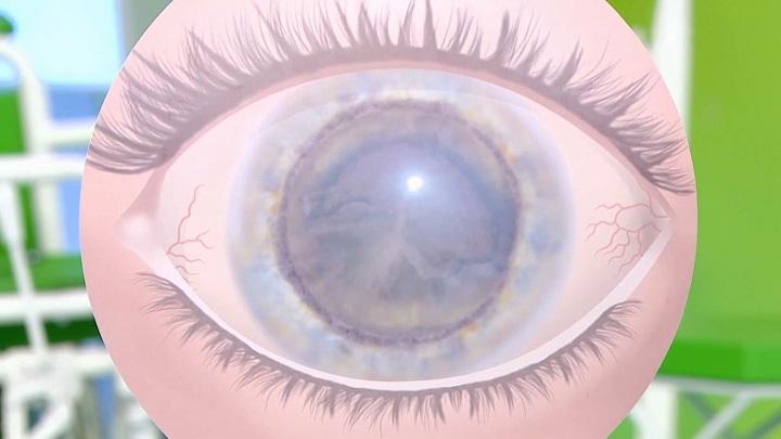 Когда нужно делать операцию по удалению катаракты