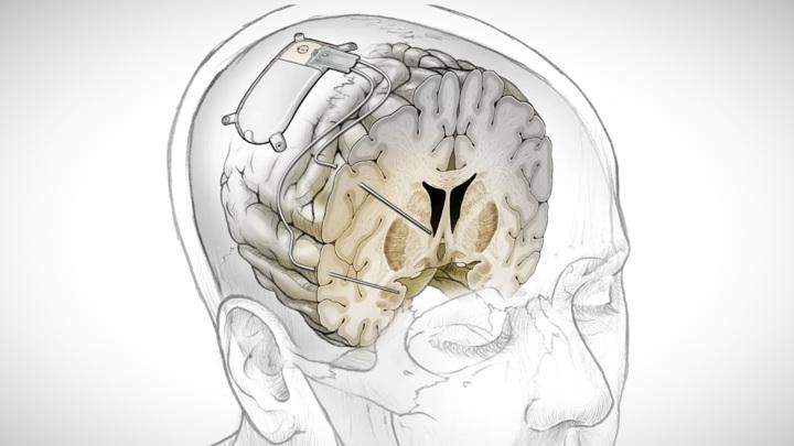 Имплантат отслеживает активность мозга, выявляя депрессивные паттерны.