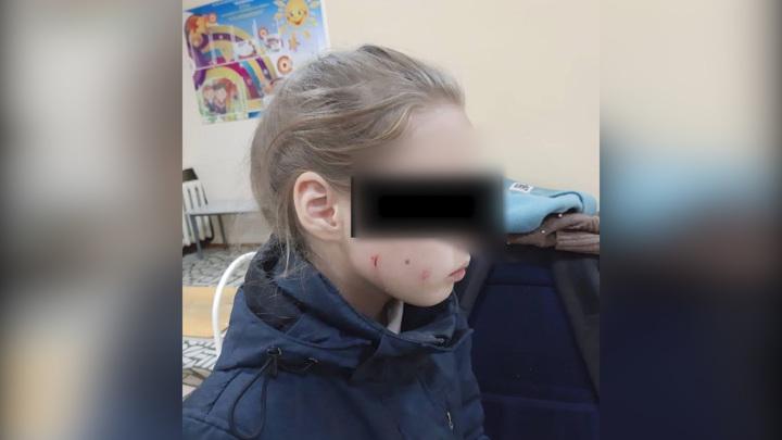 В Уфе избили 10-летнюю девочку за то, что она кормила кошек